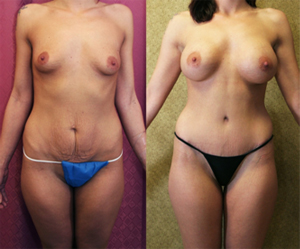 Best Breast Augmentation With Mommy Makeover Encino Bakersfield