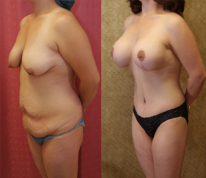 Best Breast Augmentation After Weight Loss Encino Bakersfield