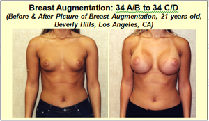 B to d breast implants