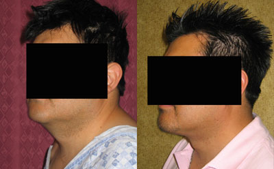 Male Neck & Face Liposuction Before & After Patient #9496