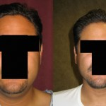 Male Neck & Face Liposuction Before & After Patient #9499