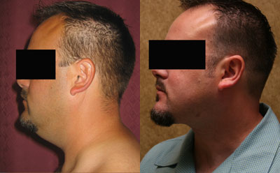 Male Neck & Face Liposuction Before & After Patient #9502