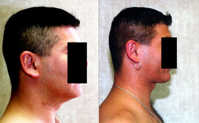 Male Neck & Face Liposuction Before & After Patient #9506