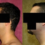 Male Neck & Face Liposuction Before & After Patient #9509