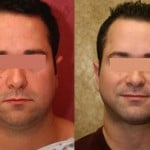 Male Neck & Face Liposuction Before & After Patient #9513