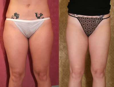 Liposuction Thighs Before & After Patient #9435