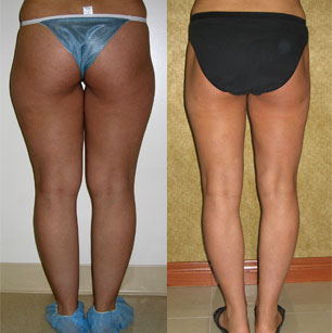 Liposuction Thighs Before & After Patient #9439