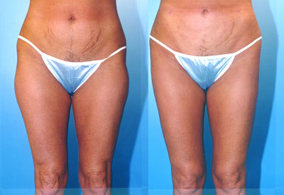 Liposuction Thighs Before & After Patient #9443