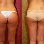 Liposuction Thighs Before & After Patient #9451