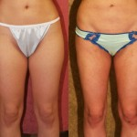Liposuction Thighs Before & After Patient #9455