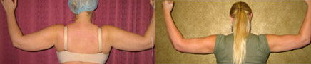 Liposuction Arms Before & After Patient #9460