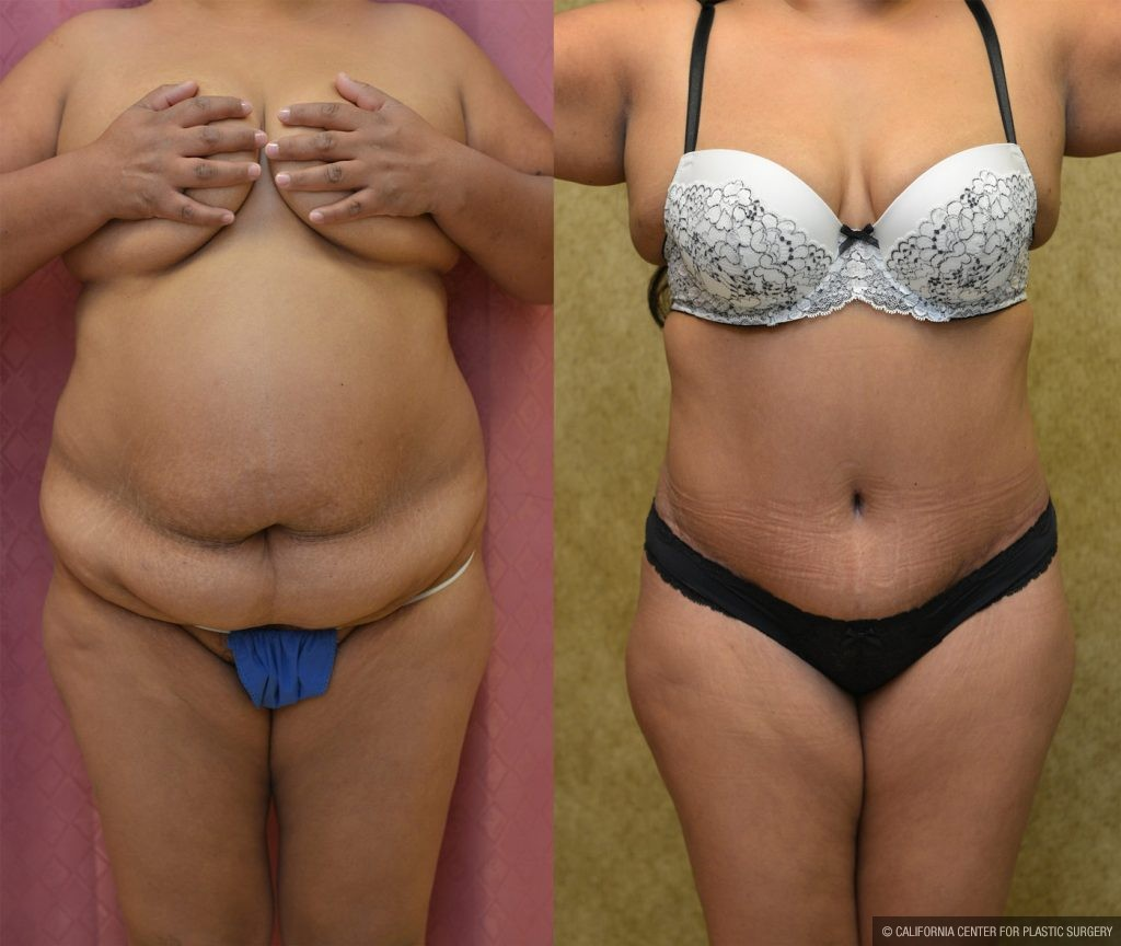 Tummy Tuck Plus Size Before & After Patient #9798