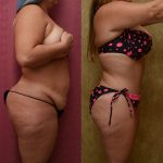Tummy Tuck Medium Size Before & After Patient #9777