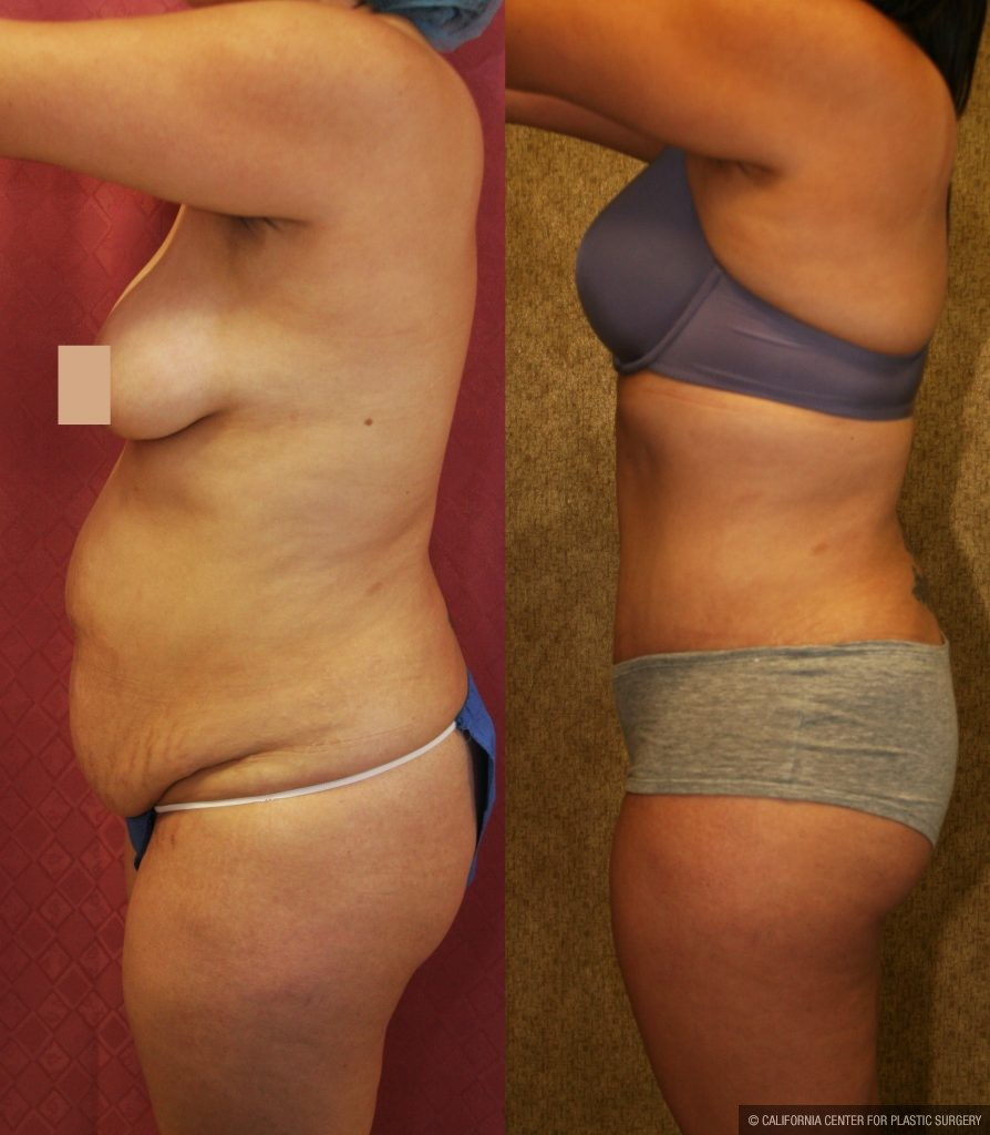 Tummy Tuck Medium Size Before & After Patient #9771