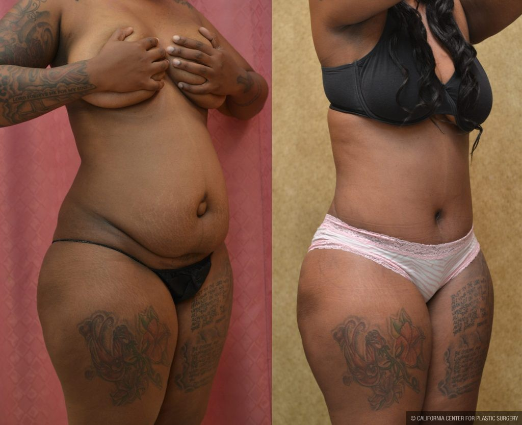 African American Tummy Tuck Before & After Patient #9787