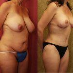 Tummy Tuck Medium Size Before & After Patient #9783