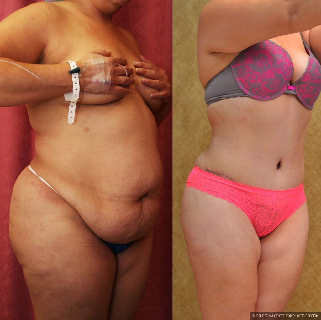 Tummy Tuck Plus Size Before & After Patient #9794