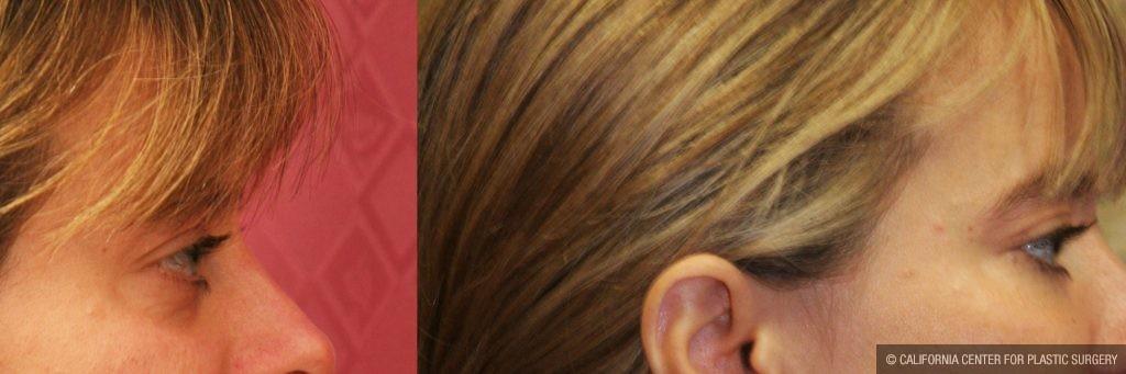 Eyelid (Blepharoplasty) Before & After Patient #9898