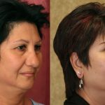 Eyelid (Blepharoplasty) Before & After Patient #9913