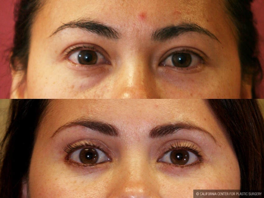 Asian Eyelid Surgery (Blepharoplasty) Before & After Patient #9888
