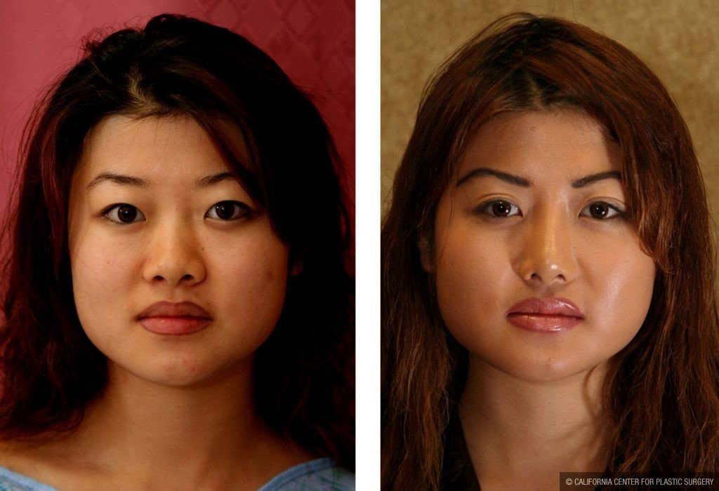 Asian Eyelid Surgery (Blepharoplasty) Before & After Patient #9883