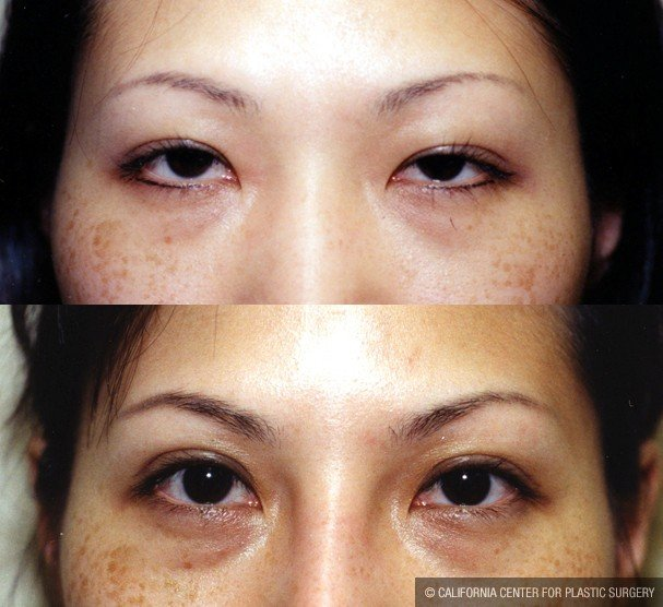Asian Eyelid Surgery (Blepharoplasty) Before & After Patient #9886