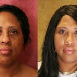 Eyelid (Blepharoplasty) Before & After Patient #9908