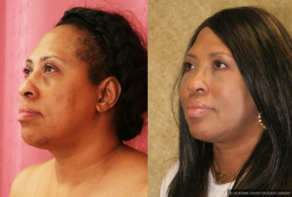 Eyelid (Blepharoplasty) Before & After Patient #9908