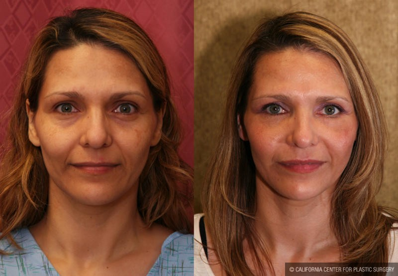 Eyelid (Blepharoplasty) Before & After Patient #9859