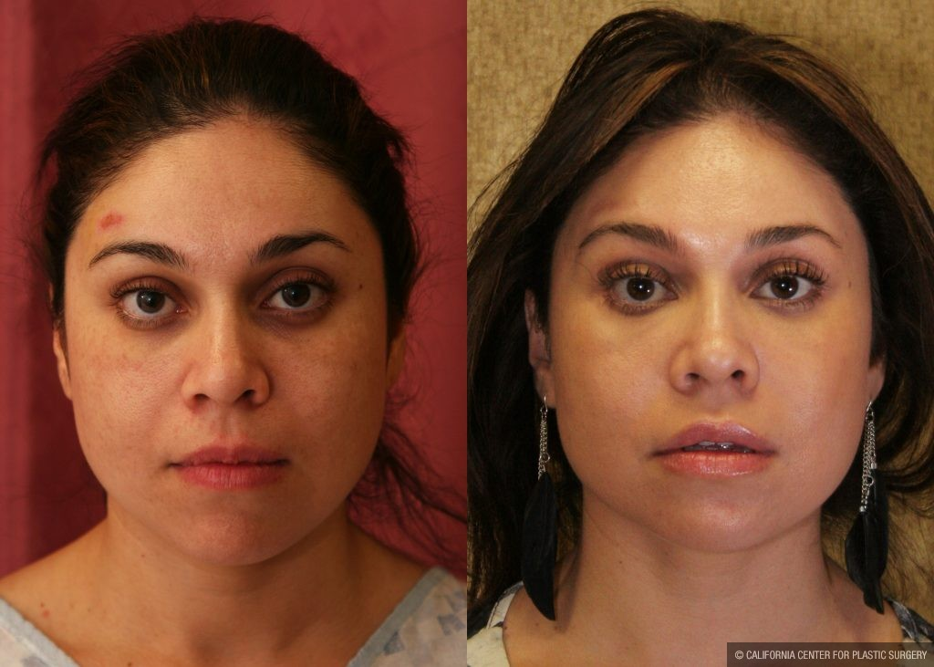 Eyelid (Blepharoplasty) Before & After Patient #9865