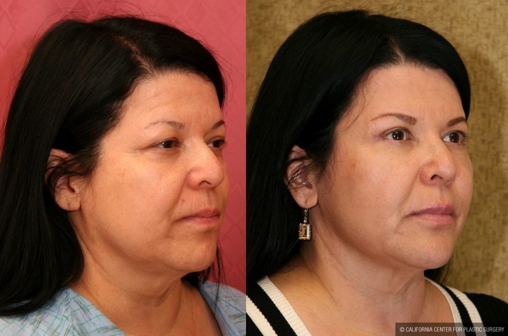 Eyelid (Blepharoplasty) Before & After Patient #9902