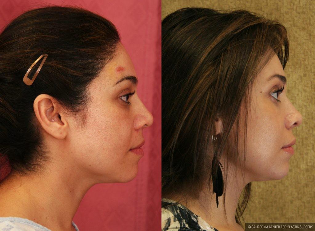 Eyelid (Blepharoplasty) Before & After Patient #9865