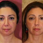 Eyelid (Blepharoplasty) Before & After Patient #9895