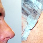 Eyelid (Blepharoplasty) Before & After Patient #9927