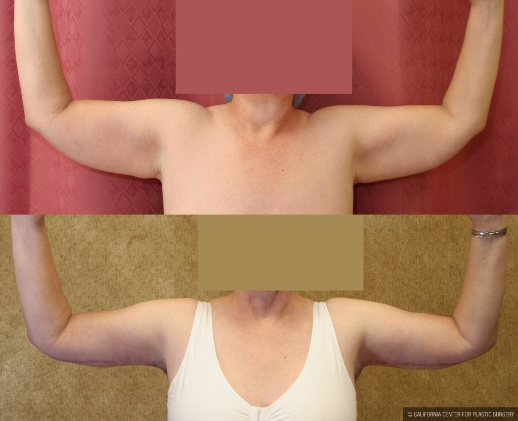 Arm Lift (Brachioplasty) Before & After Patient #9961
