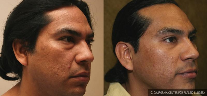 Eyelid (Blepharoplasty) Before & After Patient #9918