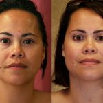 Asian Eyelid Surgery (Blepharoplasty) Before & After Patient #9923