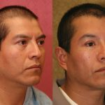 Eyelid (Blepharoplasty) Before & After Patient #9936