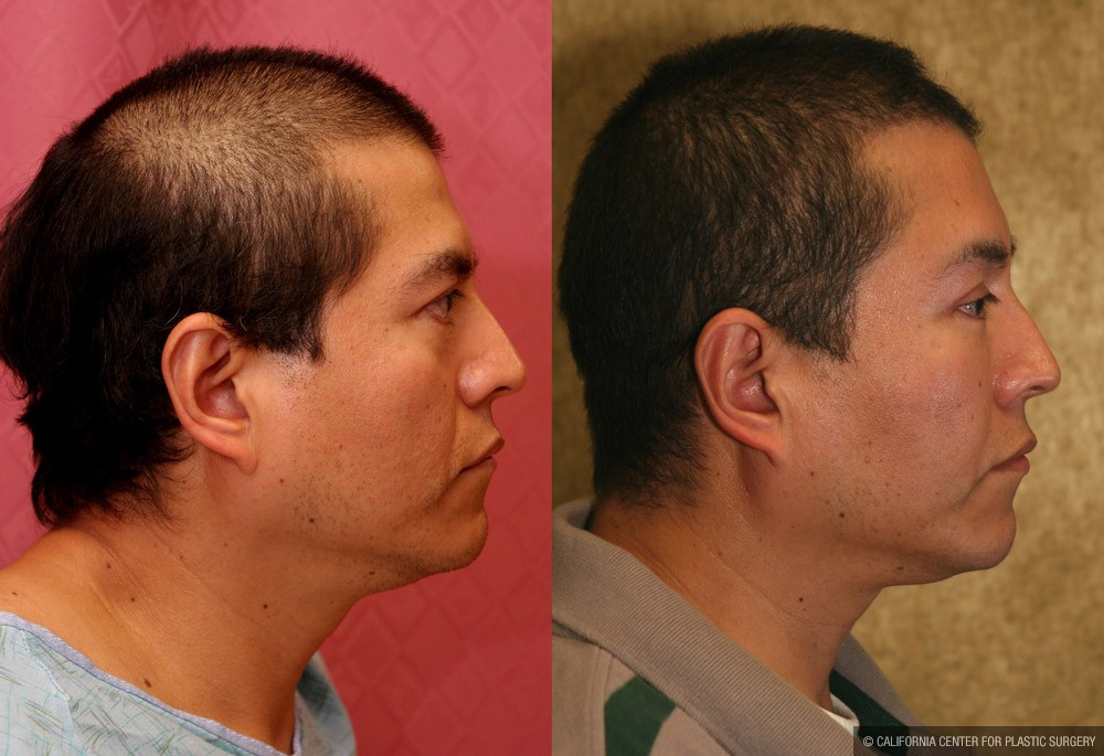 Eyelid (Blepharoplasty) Before & After Patient #9936