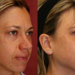 Eyelid (Blepharoplasty) Before & After Patient #9932