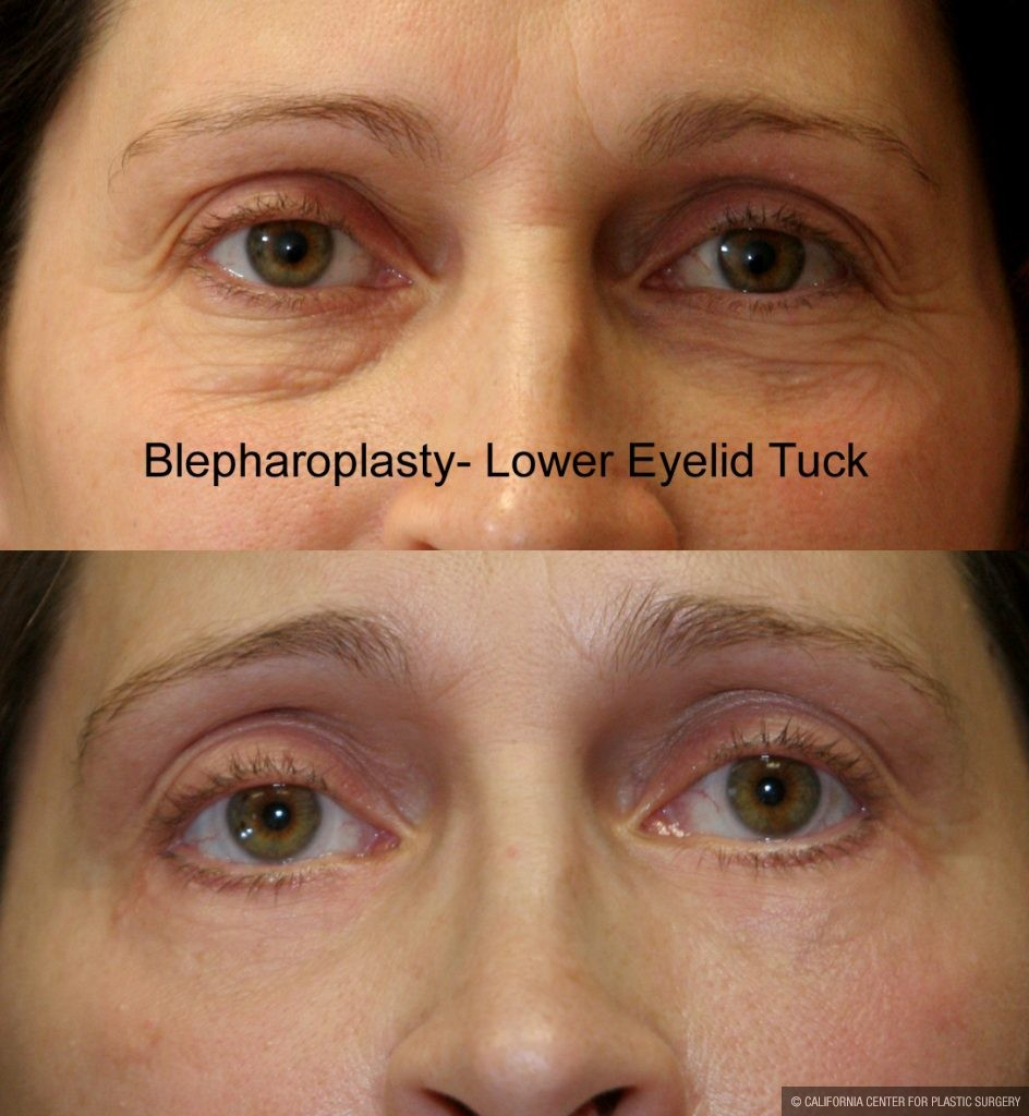 Eyelid (Blepharoplasty) Before & After Patient #9871