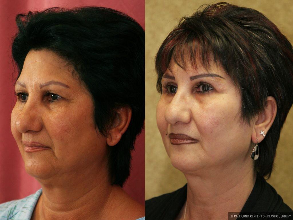 Eyelid (Blepharoplasty) Before & After Patient #9913