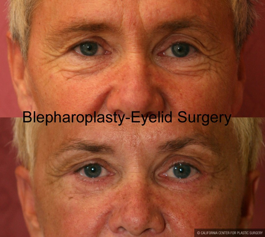 Eyelid (Blepharoplasty) Before & After Patient #9876