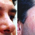 Eyelid (Blepharoplasty) Before & After Patient #9942