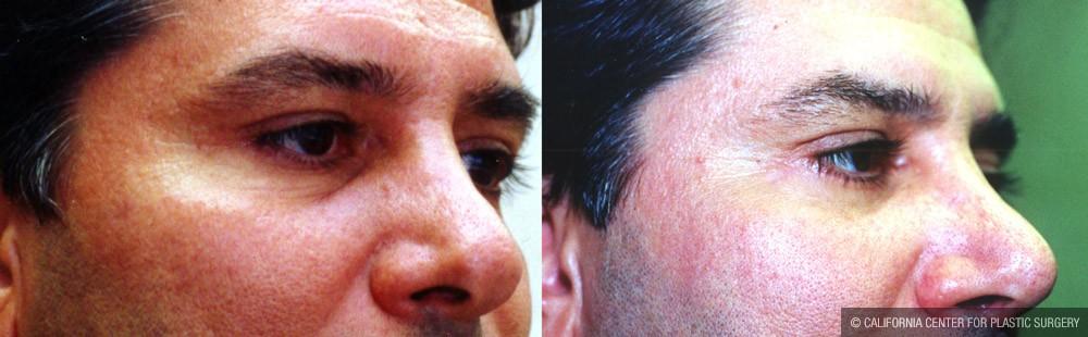 Eye makeup after cataract surgery