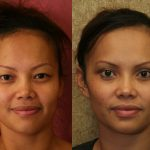 Asian Eyelid Surgery (Blepharoplasty) Before & After Patient #9891