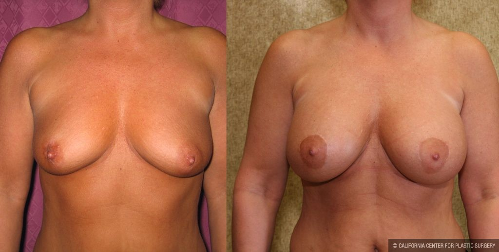 Breast Augmentation Before & After Patient #10429