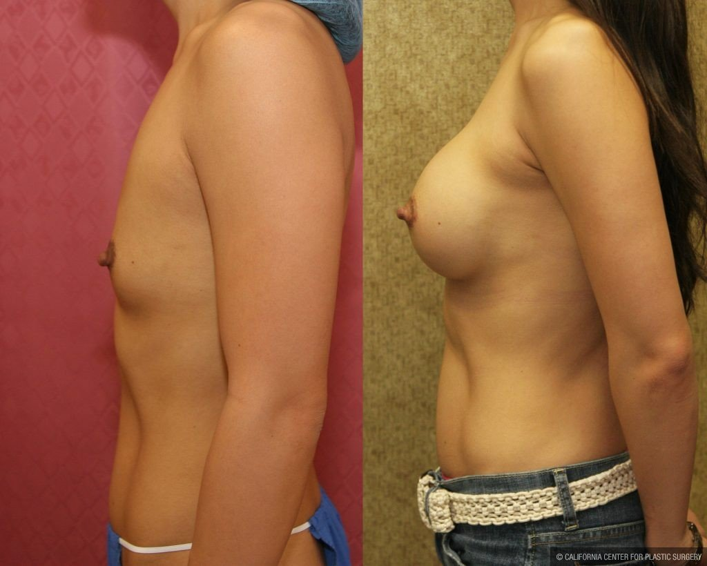 Breast Augmentation Before & After Patient #10432