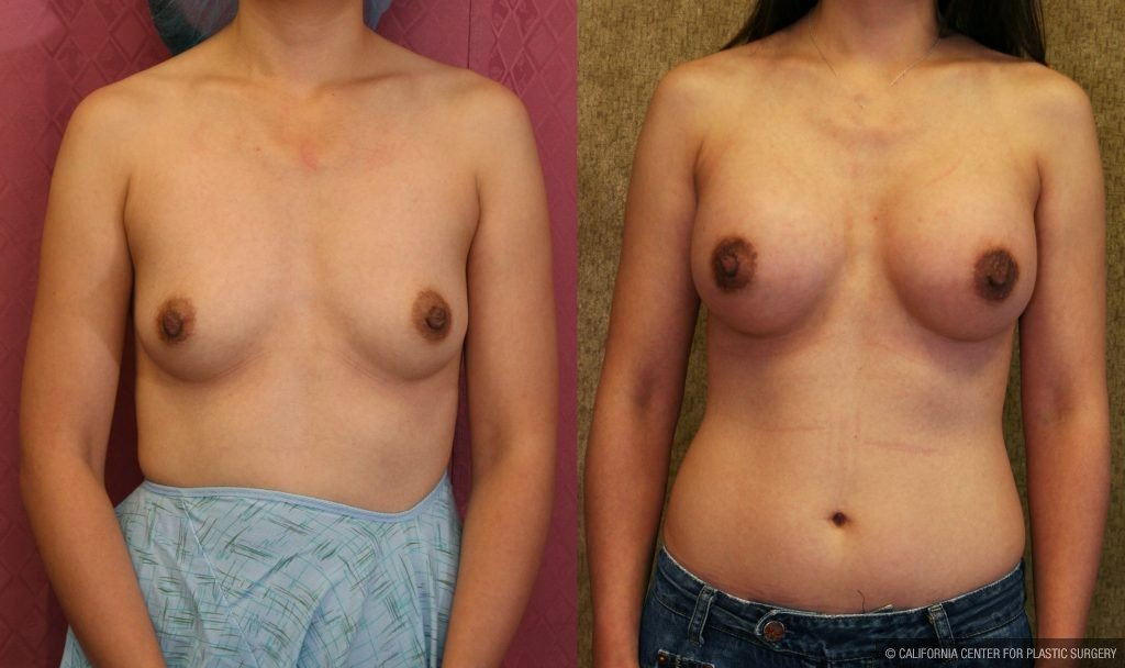 Breast Augmentation Before & After Patient #10436