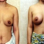 Breast Augmentation Before & After Patient #10422